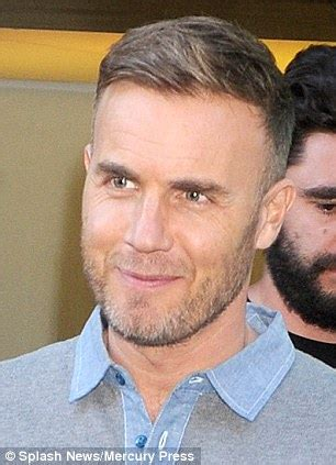 how to style hair to hide hair transplant scar could it be magic gary barlow sports suspiciously thick