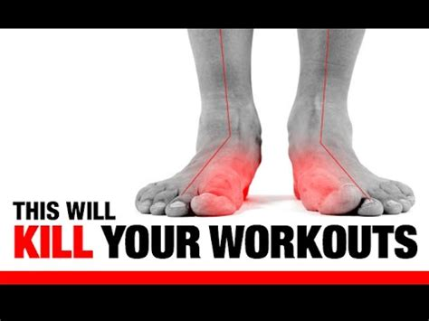 """5 ways flat feet """"f"""" up your workouts!! (exercises to fix"""