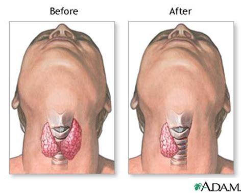 Foxx Has Surgery For Gland Problem by Hyperthyroidism Net Health Book