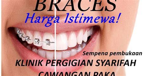 Berapa Pemutihan Gigi klinik pergigian syarifah promosi