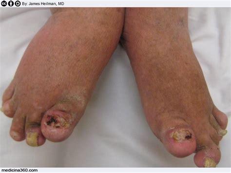 psoriasi interna artrite psoriasica