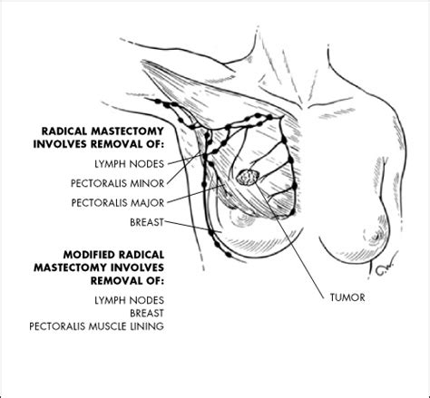 new york pattern jury instructions medical malpractice december 2010 new york personal injury law blog