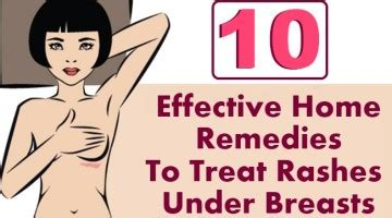 effective home remedies  treat rashes  breasts