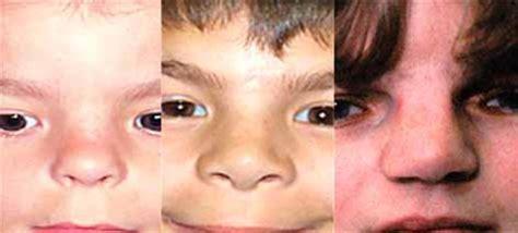 kibbe short nose big eyes diamond blackfan anemia genetics home reference