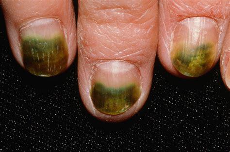 The Nail nail