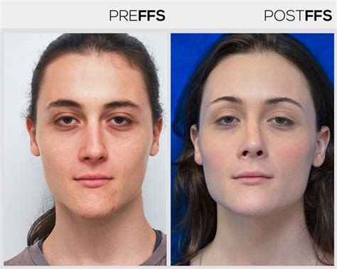 mtf ffs facial feminization surgery before and after facial feminization surgery ffs surgery facialteam