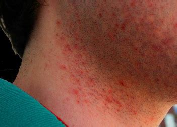 red pubes bumps after shaving legs pubes down there face itchy