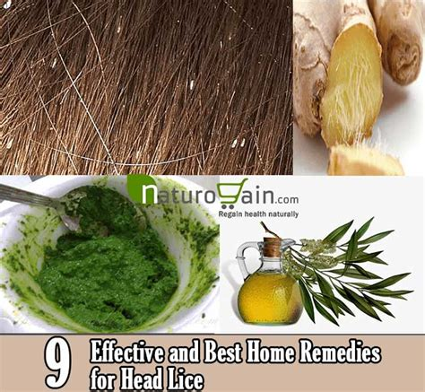 9 effective and best home remedies for lice