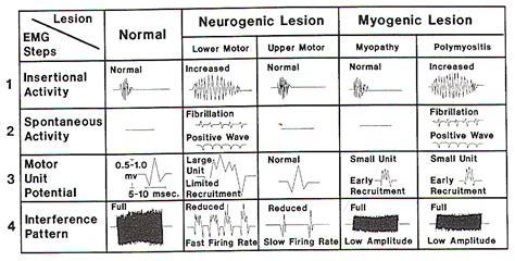 interference pattern analysis emg ncs emg