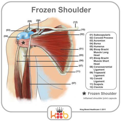 shoulder diagram king brand frozen shoulder treatment inflamed joints
