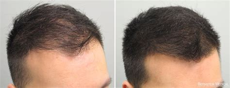 rogaine before and after pictures hair loss treatments dr anil
