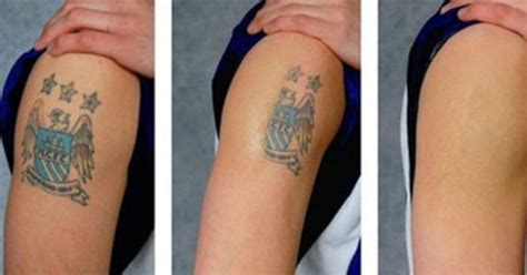 tattoo removal cream before and after before and after of wrecking balm removal