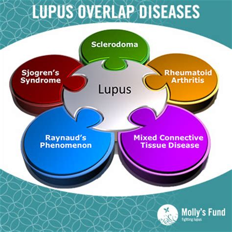 lupus can this autoimmune disease be treated naturally molly s fund autoimmune diseases