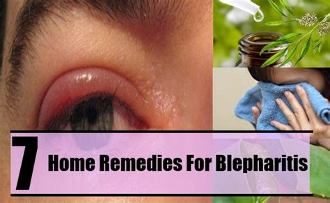 7 home remedies for blepharitis home so