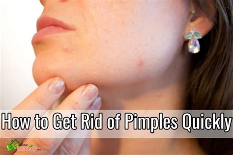 Get Rid Of Acne by How To Get Rid Of Pimples Quickly Home Remedies