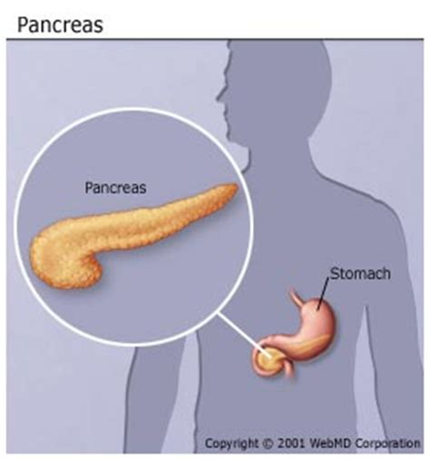 how can a live with pancreatitis pancreatitis picture symptoms causes and more