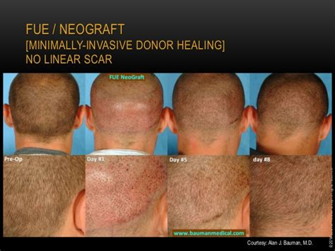 dr bauman offers no linear scar hair transplants with medical management of hair loss for the integrative