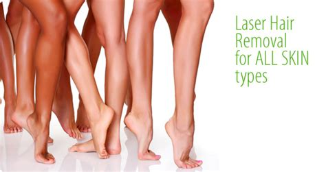 Laser Hair Removal For All Skin Types by Laser Hair Removal In Buffalo Grove Il