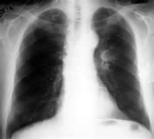 kremererin tuberculosis x ray