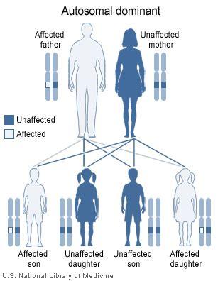 myotonic dystrophy pattern of weakness molecular basis of disease myotonic dystrophy