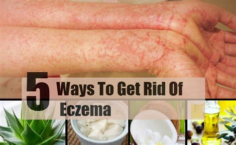 Home Remedy For Eczema by Eczema Home Remedies For Skin Foto 2017