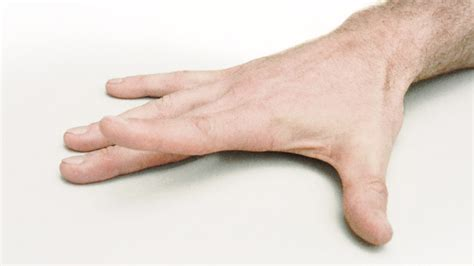 to finger 7 hand exercises to ease arthritis pain