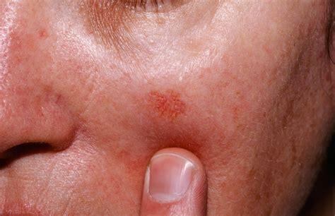 light burning in stomach actinic keratosis causes symptoms actinic keratosis