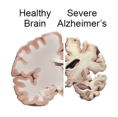 alzheimer s how to harness nature to prevent and manage alzheimer s disease reset me