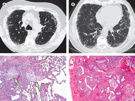 new guidelines for idiopathic pulmonary fibrosis the lancet idiopathic pulmonary fibrosis the lancet