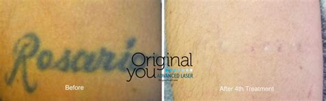 advanced laser tattoo removal laser tattoo removal in