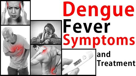 fever treatment dengue fever symptoms and treatment dengue fever treatment dengue treatment at