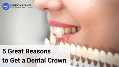 7 Reasons To Get Your Teeth Whitening Procedure Done By A Pro by 5 Great Reasons To Get A Dental Crown In Columbus Ohio