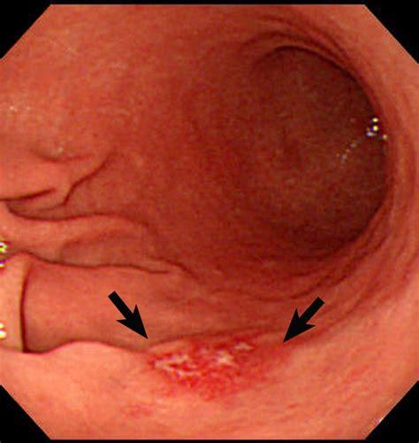 stomach tumor dr altin cekodhima