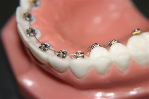 braces teeth chino orthodontist 909 333 6465 braces orthodontist review