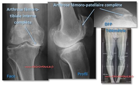 condropatia femoro tibiale interna proth 232 se totale ou proth 232 se partielle de genou comment