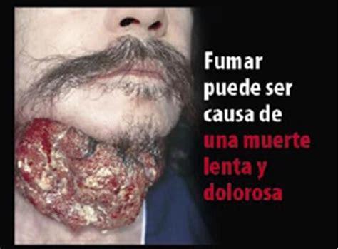 imagenes fuertes sobre el tabaquismo 191 queres dejar de fumar im 225 genes taringa