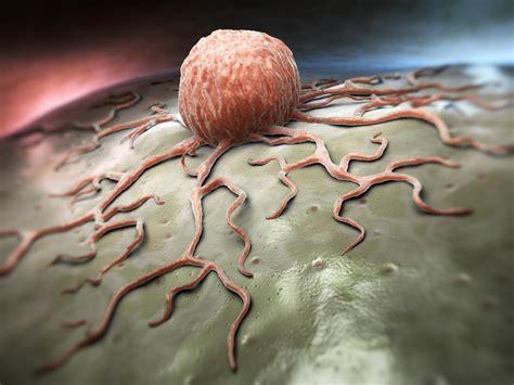 alimentazione e cancro alimentazione e cancro un viaggio nel mondo delle terapie