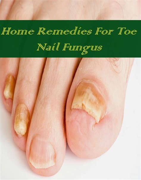 17 best ideas about nail fungus on toenail