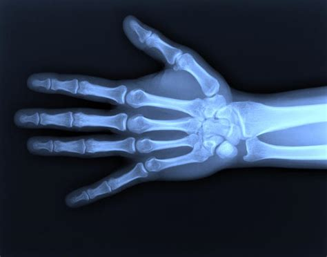 how long does it take for wrist fracture pain to go away