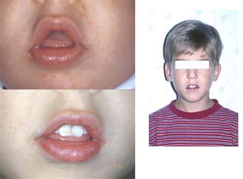 adenoidi e alimentazione alimentazione e ginnastica posturale nei bambini adenoidei