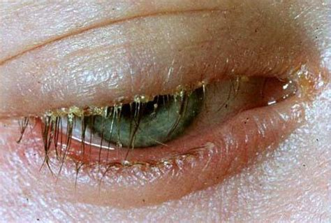 pink eye sensitive to light eye is red and watering sensitive to light hairsstyles co