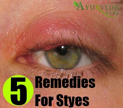 5 styes home remedies treatments and cure