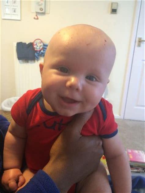 light skinned mixed baby.. so what?!? babycenter