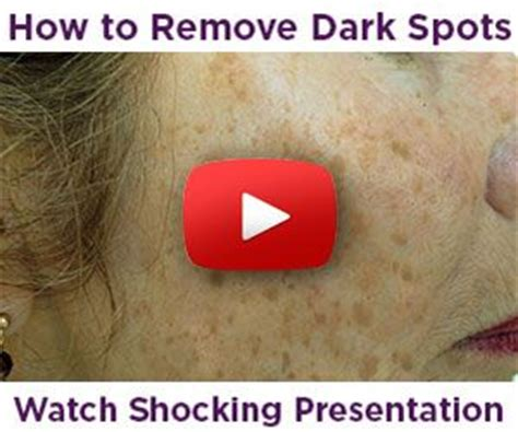 beverly hills md dark spot corrector reviews photos beverly hills md dark spot corrector is an intensive dark