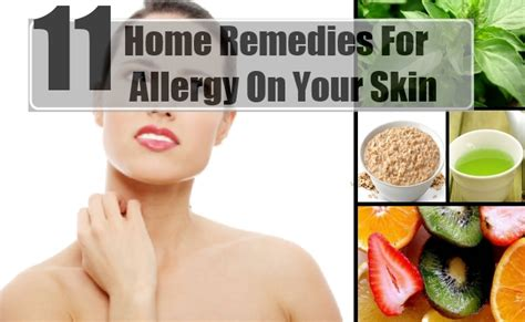 11 home remedies for allergy on your skin