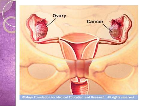 Kanker Organ Reproduksi Kanker Pada Sistem Reproduksi