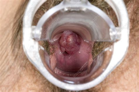 vagina interior cervical polyp stock image c023 4308 science photo library