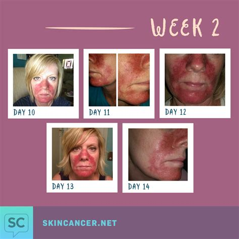 before picosure treatments and 2 weeks after my my journey with efudex in photos skincancer net