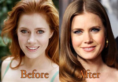 Did Amy Carlson Get Plastic Surgery | amy adams plastic surgery before and after nose job pictures