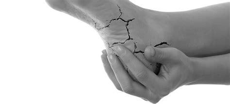 Menghilangkan Kaki Pecah Pecah Foot Bellezkin gejala penyebab pencegahan kaki kering pecah pecah